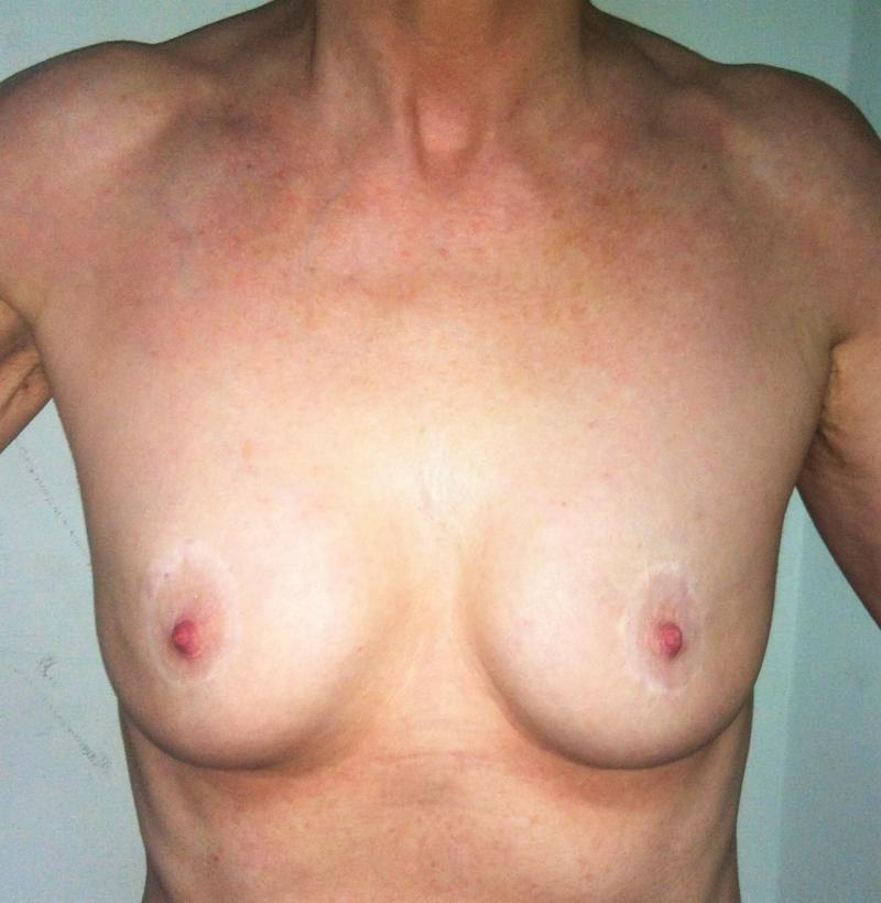 Breast Augmentation Egypt, Fat Grafting Egypt, Fat Transfer, Breas Lift Cosmetic