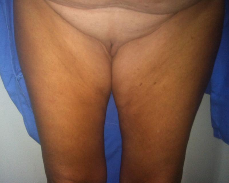Best Cosmetic Surgeon Egypt, Thigh Lift, Medial Thigh Lift, Vaser Liposuction