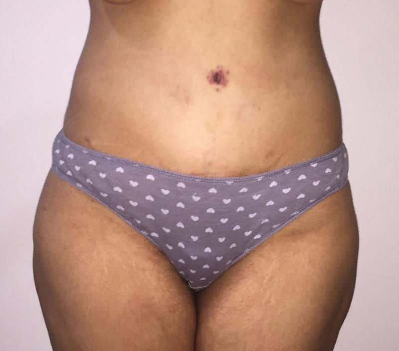 Body Lift, arm Lift, Thigh Laser Liposuction, Sleeve Gastrectomy, Plastic Surger