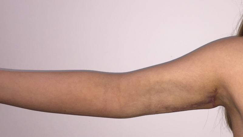 Arm Lift, Arm Liposuction, Arm Vaser Liposuction, Sleeve Gastrectomy, Cosmetic