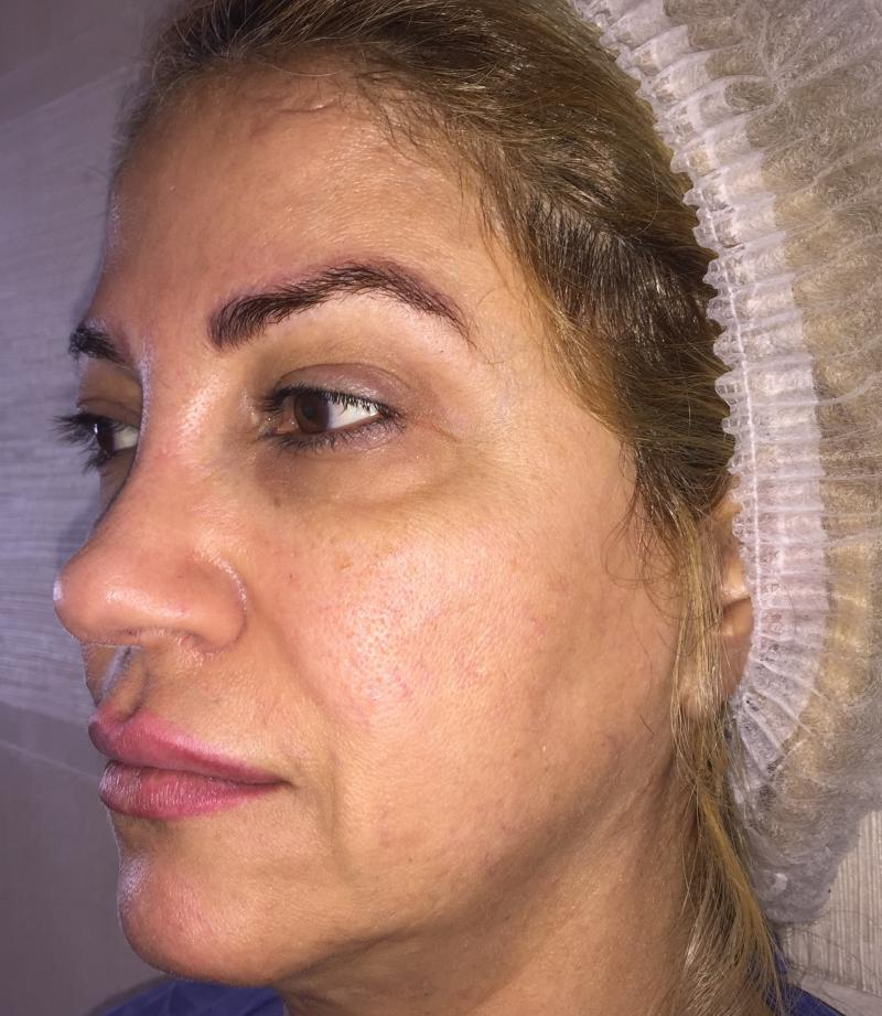 Face Lift, Midface Lift, Forehead Lift, Blepharoplasty Best Cosmetic Surgery
