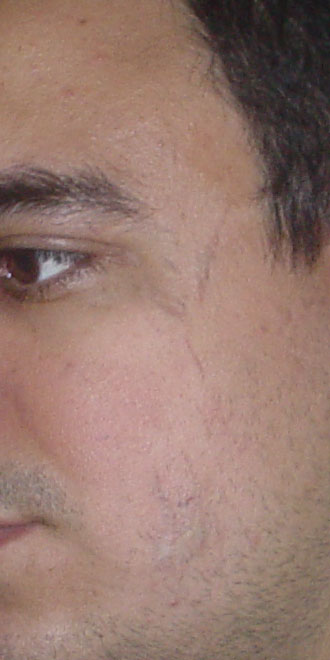 Plastic Surgery Egypt,Cosmetic Surgery Egypt, Scar, laser removal, Nd-YAG Laser