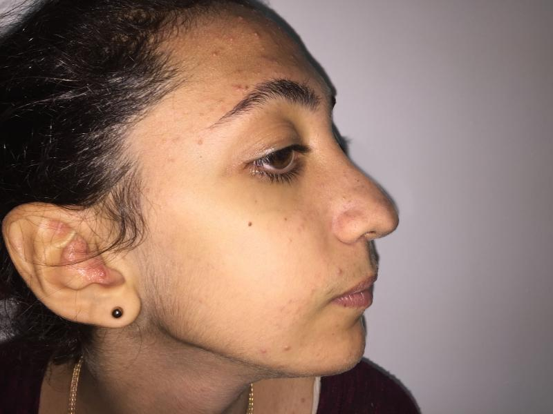 Nose Job, Rhinoplasty, Nasal Hump, Big tip, Best Plastic Surgeon, Nose Reduce
