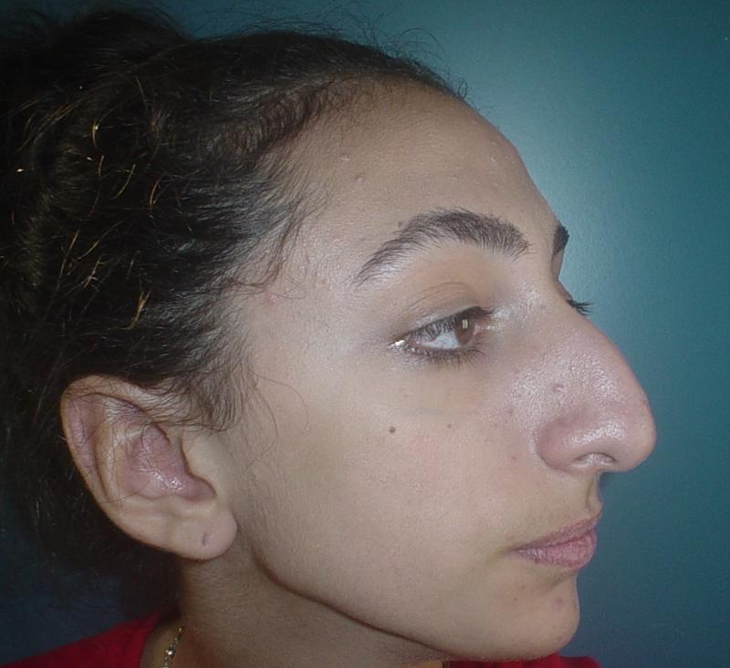 Nose Job, Rhinoplasty, Nasal Hump, Big tip, Best Cosmetic Surgeon, Nose Reduce