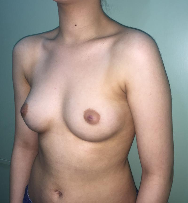 Breast Enlargement Egypt, Best Plastic Surgery Egypt, Breast Fat Injection