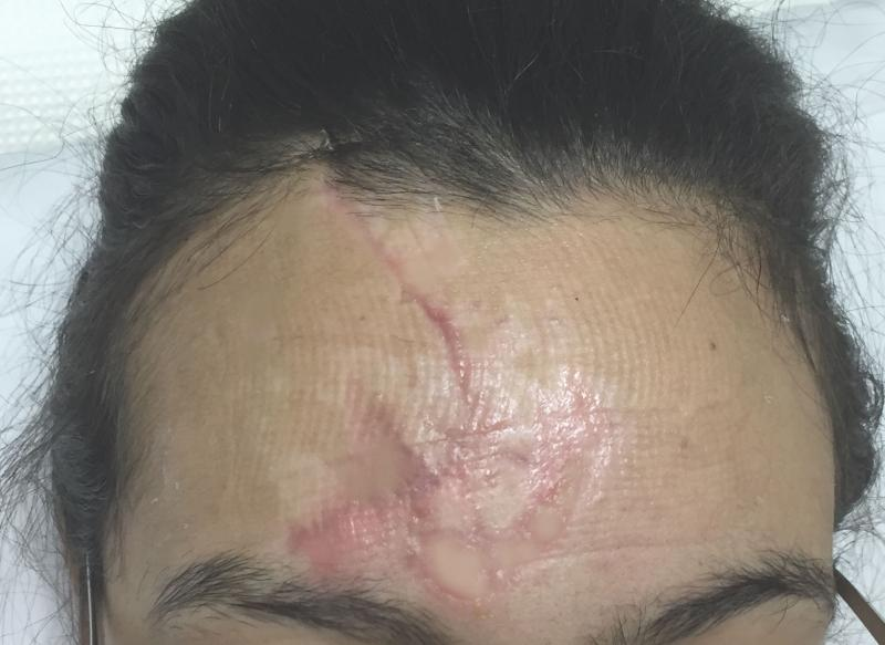 Best Cosmetic Surgery Egypt, Scars, Botox Injection, Fat Injection, Keloids
