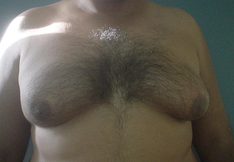 Gynecomastia Egypt, Breast Augmentation, Breast Reduction Egypt, Cosmetic Surger