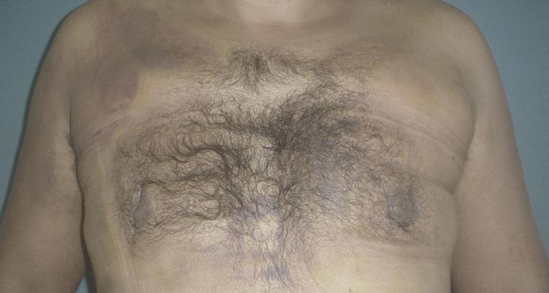 Gynecomastia Egypt, Breast Augmentation, Breast Reduction Egypt, Plastic Surgery