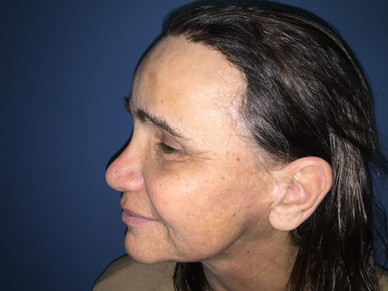 Forehead Reduction, Forehead Lift, Endotyne, Face Lift, Best Cosmetic Surgery