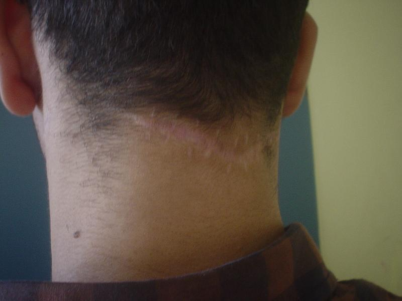 Scars in Egypt, Botox in Egypt, Cosmetic Surgery in Egypt, Best Plastic Surgeon