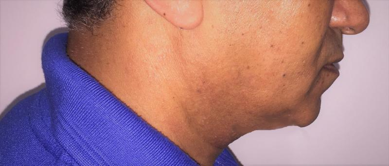 Neck Lift, Neck liposuction, neck bands, Vaser Liposuction, Best Cosmetic