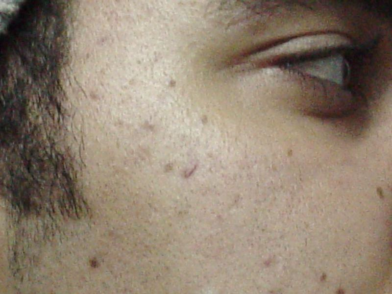 Dark spots Laser Fractional Egypt Plastic Cosmetic Surgery Cairo