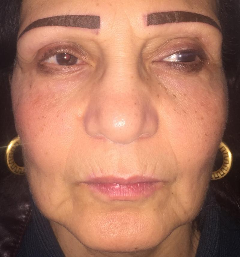Face Scar, Face Lift, Best cosmetic surgery, Vaser Lipo, Eyelid lift, Face fold