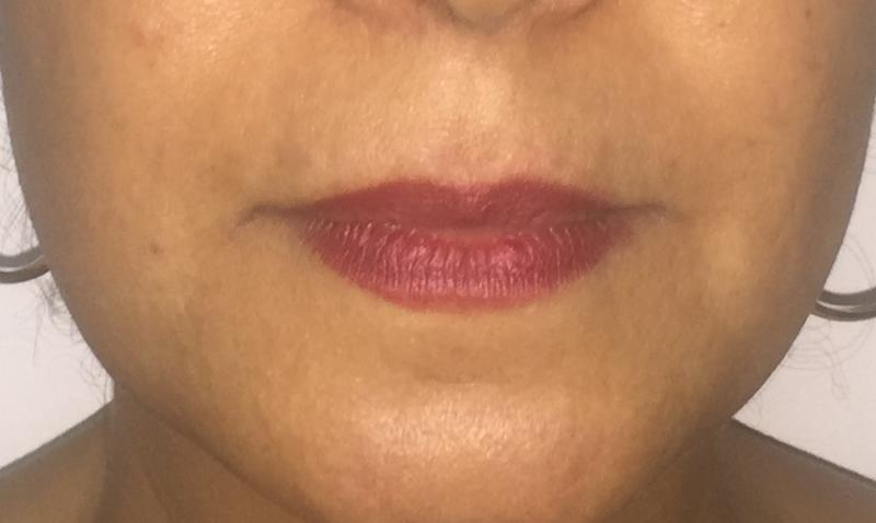 Lip Fillers, Face fillers, Nasolabial fillers, Best Cosmetic Surgery Egypt,