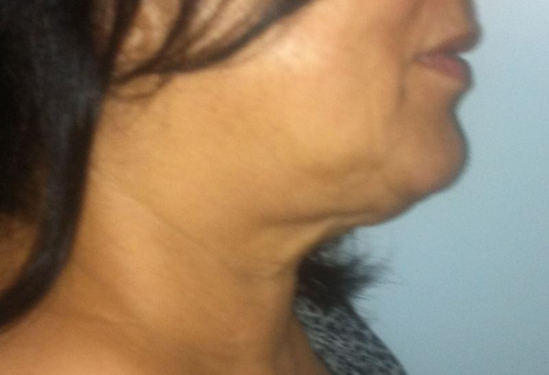 Best Plastic Surgery Egypt, Neck Lift, Lip Fillers, Face Lift, Neck laser Lipo