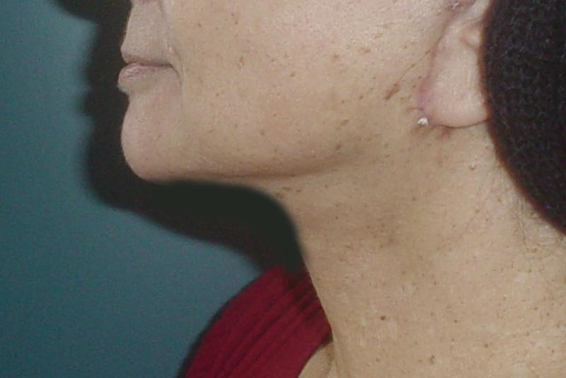 Neck Lift Egypt, Laser Liposuction, Vaser Liposuction, Face Lift, Cosmeti Surger