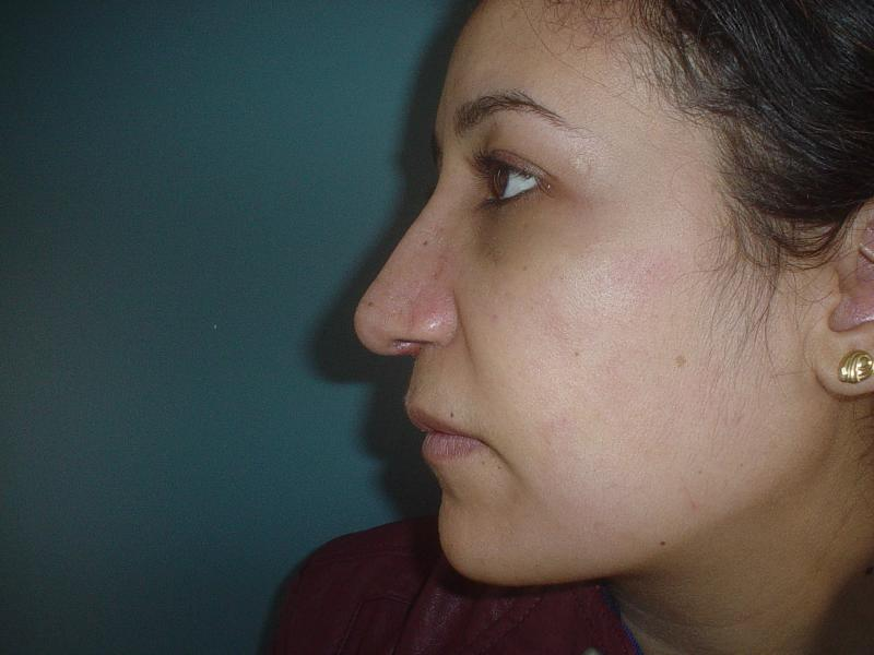 Best Cosmetic Surgeon Egypt, Nose Hump Egypt, Nose tip Egypt, Rhinoplasty Egypt