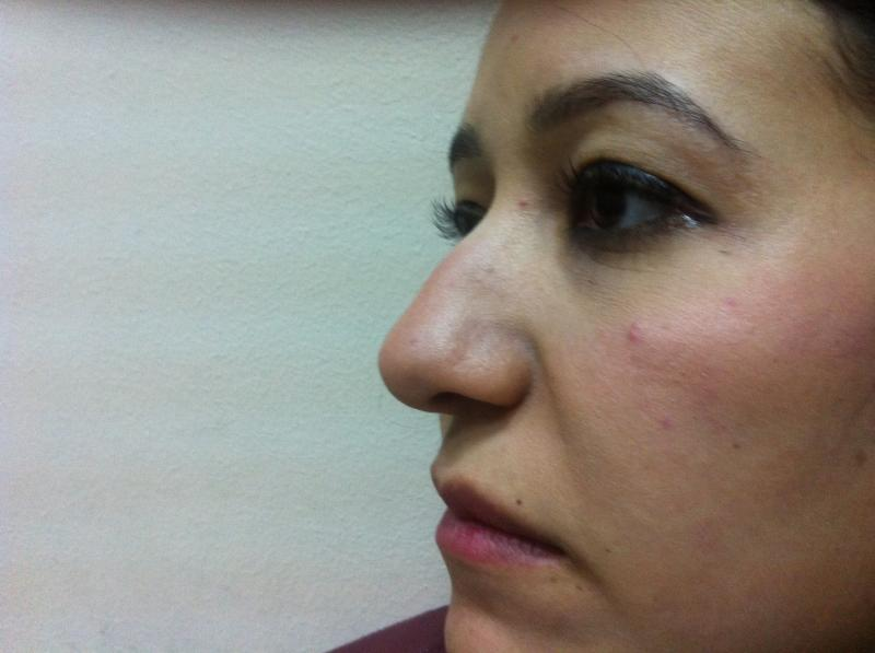 Best Plastic Surgeon Egypt, Nose Hump Egypt, Nose tip Egypt, Rhinoplasty Egypt