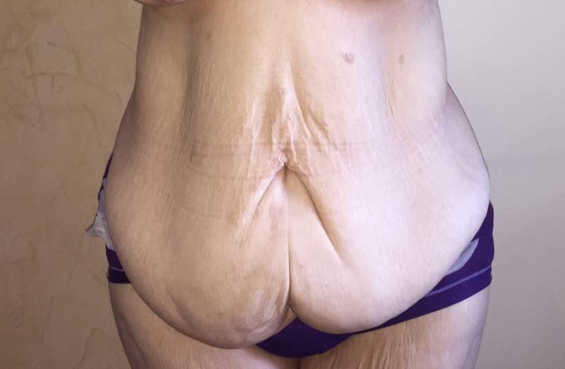 Body Lift, Abdomen, Thigh Laser Liposuction, Sleeve Gastrectomy, Cosmetic Surger