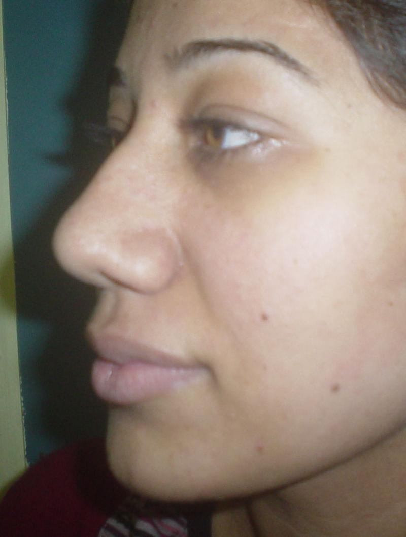 Plastic surgery Egypt, Nose Job, Rhinoplasty, Nose tip, Nose Hump, Nose Base