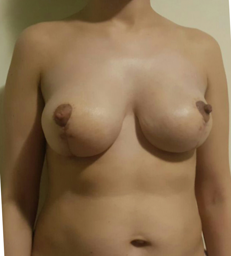 Best Cosmetic Surgeon Egypt, Mastopexy, Breast Reduction, Breast Lift, Mammopexy