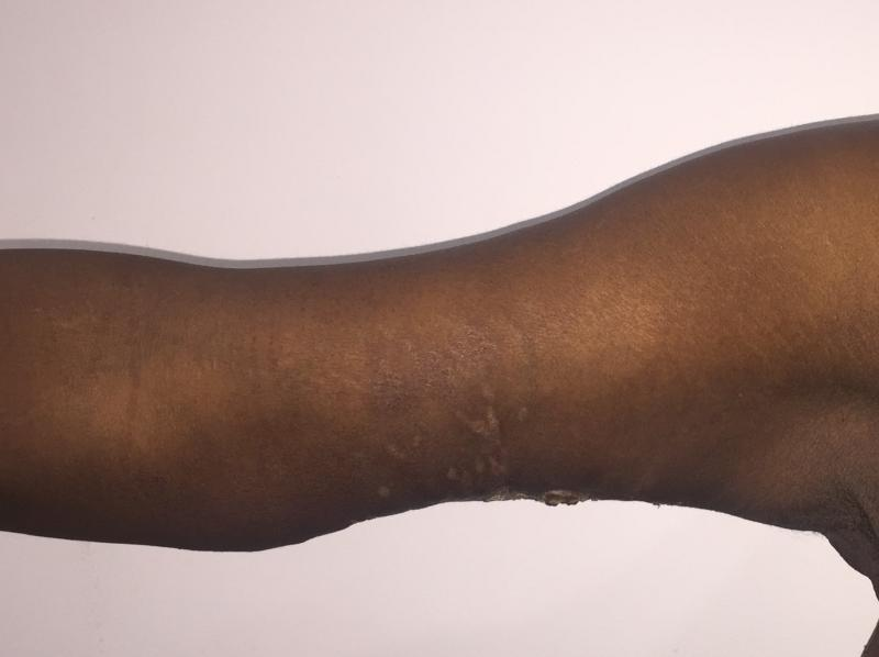 Arm Lift, Arm Vaser Liposuction, Arm after Sleeve Gastrectomy, Best Plastic Surg