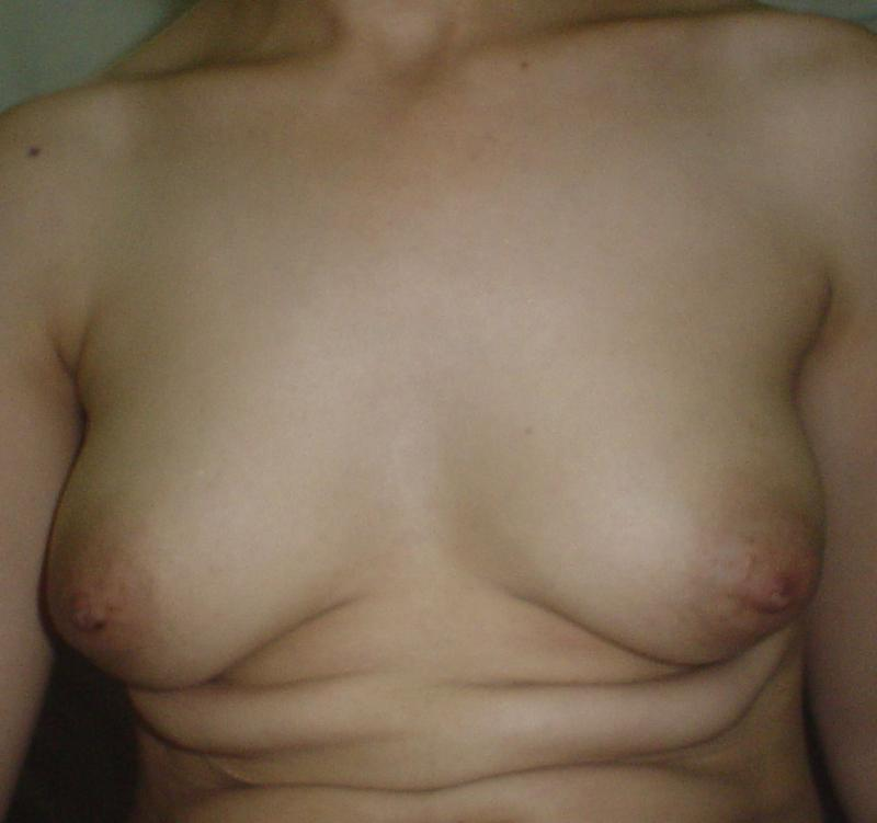 Best Cosmetic Surgery,Plastic surgery Egypt,Small breasts,Breast Augmentation
