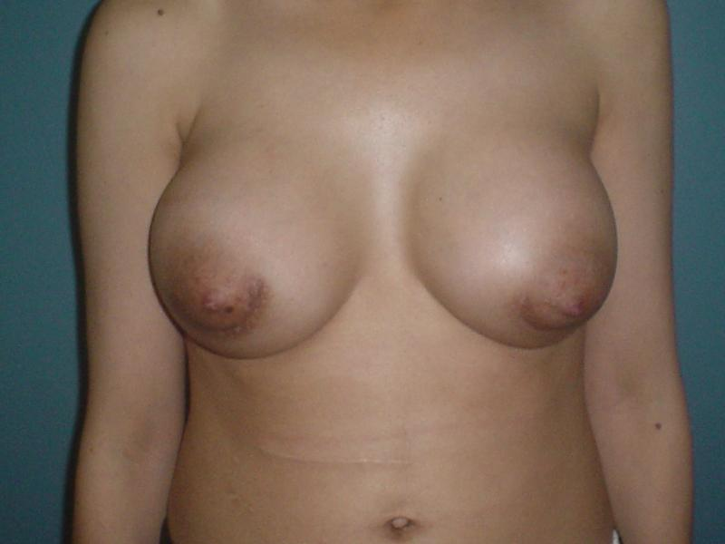 Cosmetic surgery in Egypt,Best Plastic Surgeonm,Breast Augmentation,Silicon