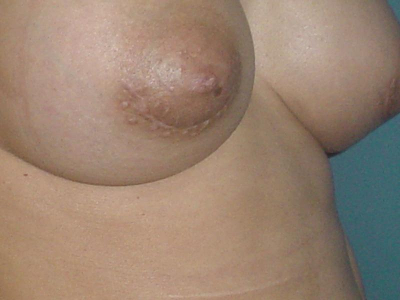 Breast Enhancement,Breast Augmentation,Breast Lift,Best Cosmetic Surgery egypt