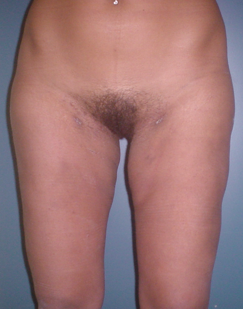 Laser Liposuction Thighs,Cosmetic Surgery Egypt,Liposuction fat,Plastic Surgery