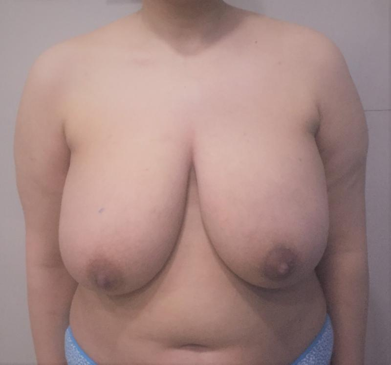 Reduction Mammoplasty and Mastopexy and Vaser Liposuction for Breast Reduction