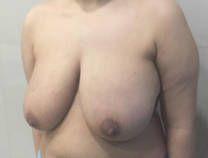 Breast reduction Lift Mastopexy, Laser Liposuction, Reduction Mammoplasty, Plast
