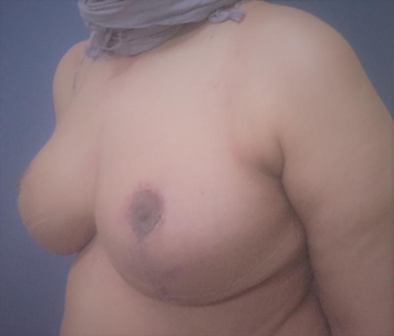 Breast reduction Lift Mastopexy, Laser Liposuction, Reduction Mammoplasty, Cosmt