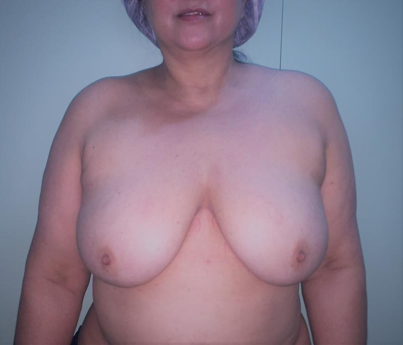 Breast Reduction, Breast Lift, Reduction Mastopexy Best Cosmetic Surgery, laser