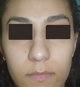 Nose Job, Rhinoplasty, Nasal Hump, Big tip, Best Aesthetic Surgeon, Nose Reduce