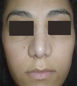 Nose Job, Rhinoplasty, Nasal Hump, Big tip, Best Plastic Surgeon, Nose surgery