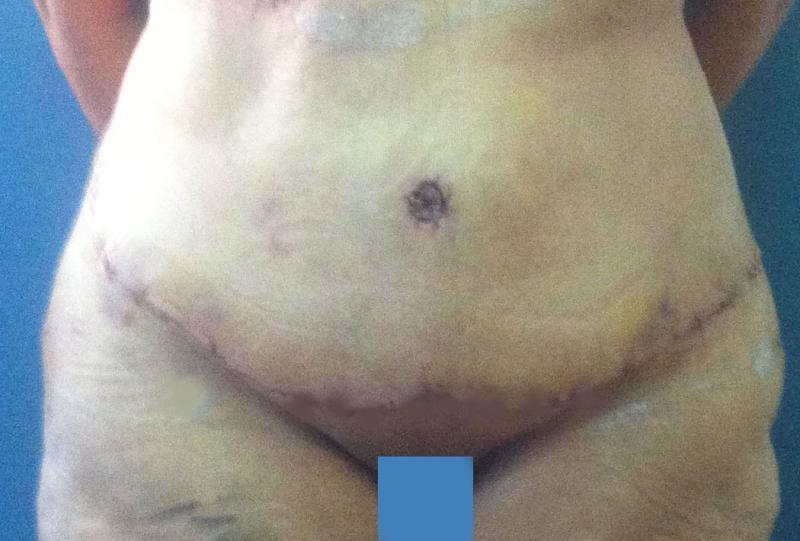 Best Plastic  Surgery Egypt, Abdominoplasty Tummy, Outer thigh laser liposuction