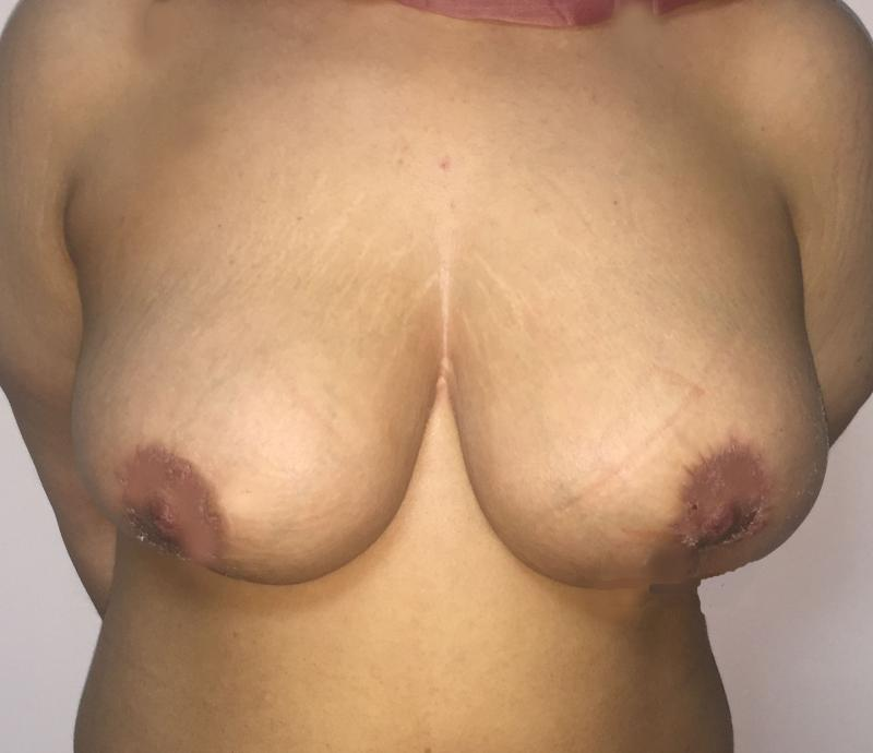 Breast Fat Injection Egypt, Breast Lift, Breast Enlargement, Plastic Surgery