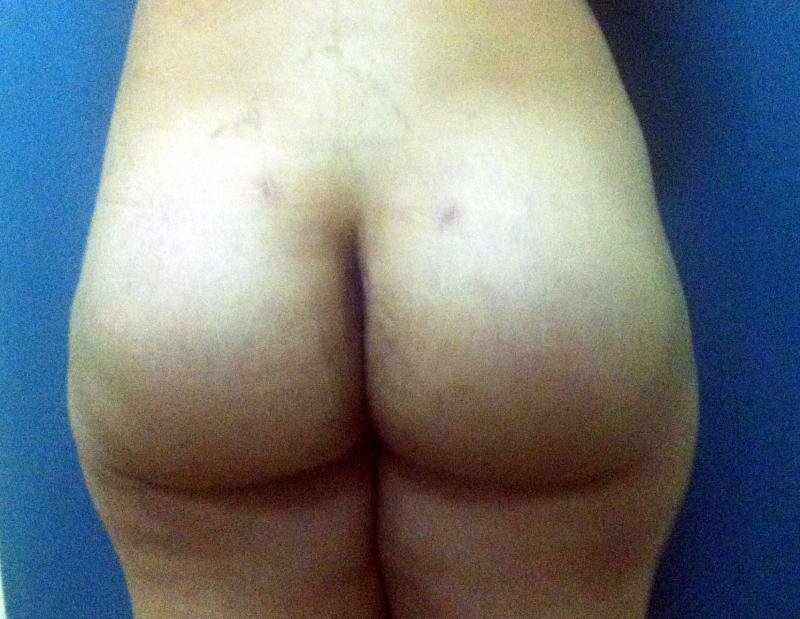 Butt Augmentation Ptosis Egypt, Breast Lift Egypt, Mastopexy, Cosmetic Surgery