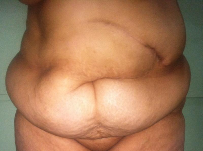 Tummy Tuck Abdominoplasty, Hernia repair, Laser Liposuction, Best Plastic Surger