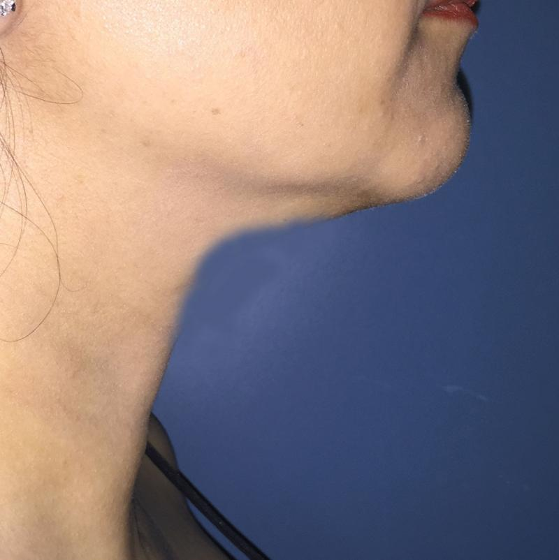 Neck lift, Neck Liposuction, Vaser Liposuction, Best Cosmetic Surgery Egypt