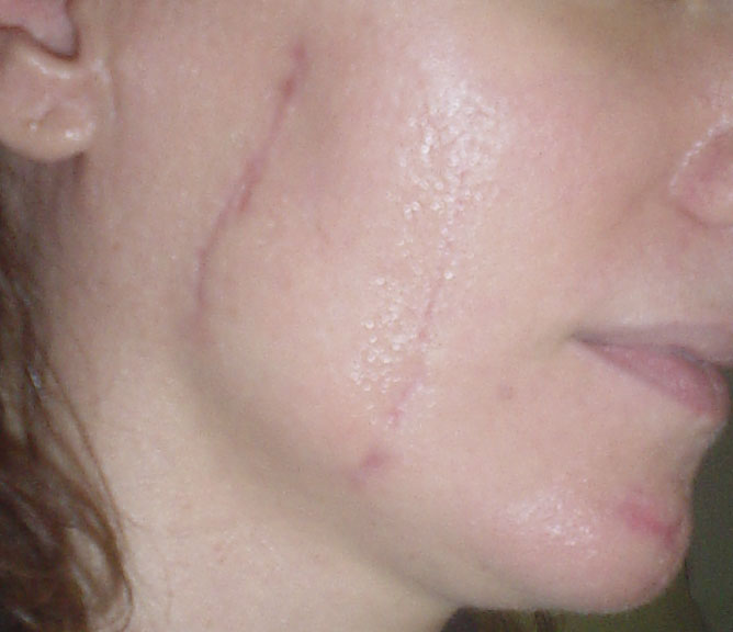 Stem cells, Stem cells for scars, Face scars, Stem cell laser, Cosmetic Surgery