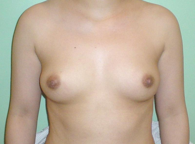 Plastic Cosmetic Surgery Egypt Breast augmentation reduction face lift