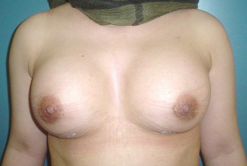 Cosmetic surgery,Egypt,Breast enhancement,breast augmentation,Silicon implant