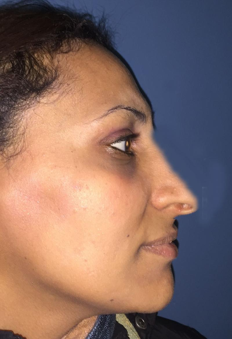 Nose Job, Rhinoplasty, Nasal Hump, Big tip, Best Cosmetic Surgeon, Deviated nose