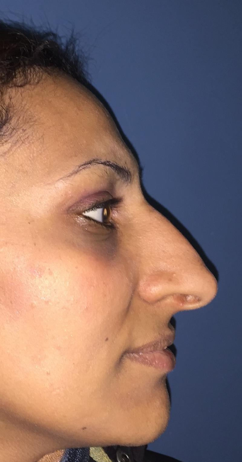 Nose Job, Rhinoplasty, Nasal Hump, Big tip, Best Plastic Surgeon, Deviated nose