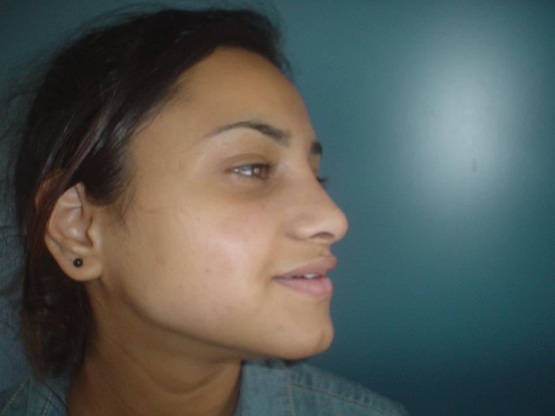 Best Cosmetic Surgery Egypt, Secondary Nose Job, Secondary rhinoplasty, Deviate