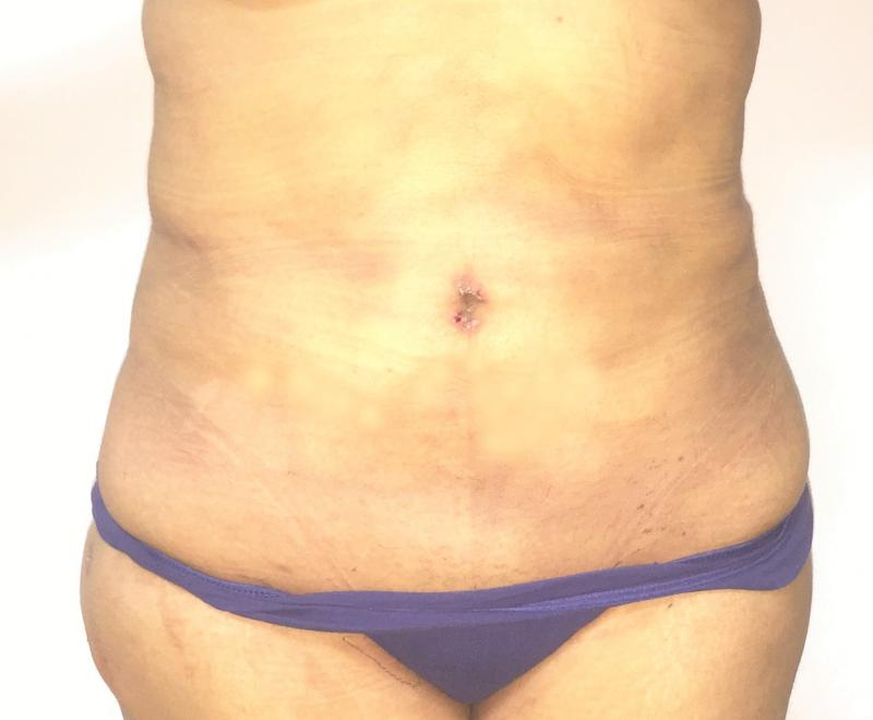 Abdominal Liposuction, Laser Liposuction, Liposculpture, Cosmetic Surgery Egypt
