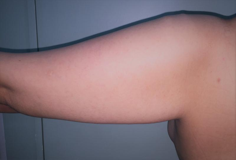Arm Lift, Arm Liposuction, Arm Laser Liposuction, Best Cosmetic Surgery Egypt