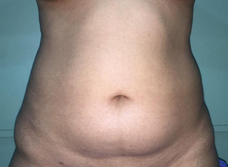 Abdominal Liposuction, Laser Liposuction, Liposculpture, Plastic Surgery Egypt